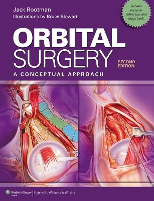 Orbital Surgery: A Conceptual Approach 2nd edition