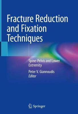 Fracture Reduction and Fixation Techniques: Spine-Pelvis and Lower Extremity 1st ed. 2020